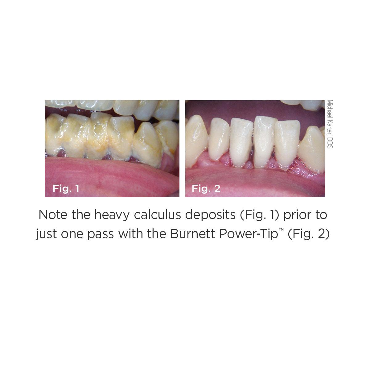 Burnett Power-Tip Clinical Images