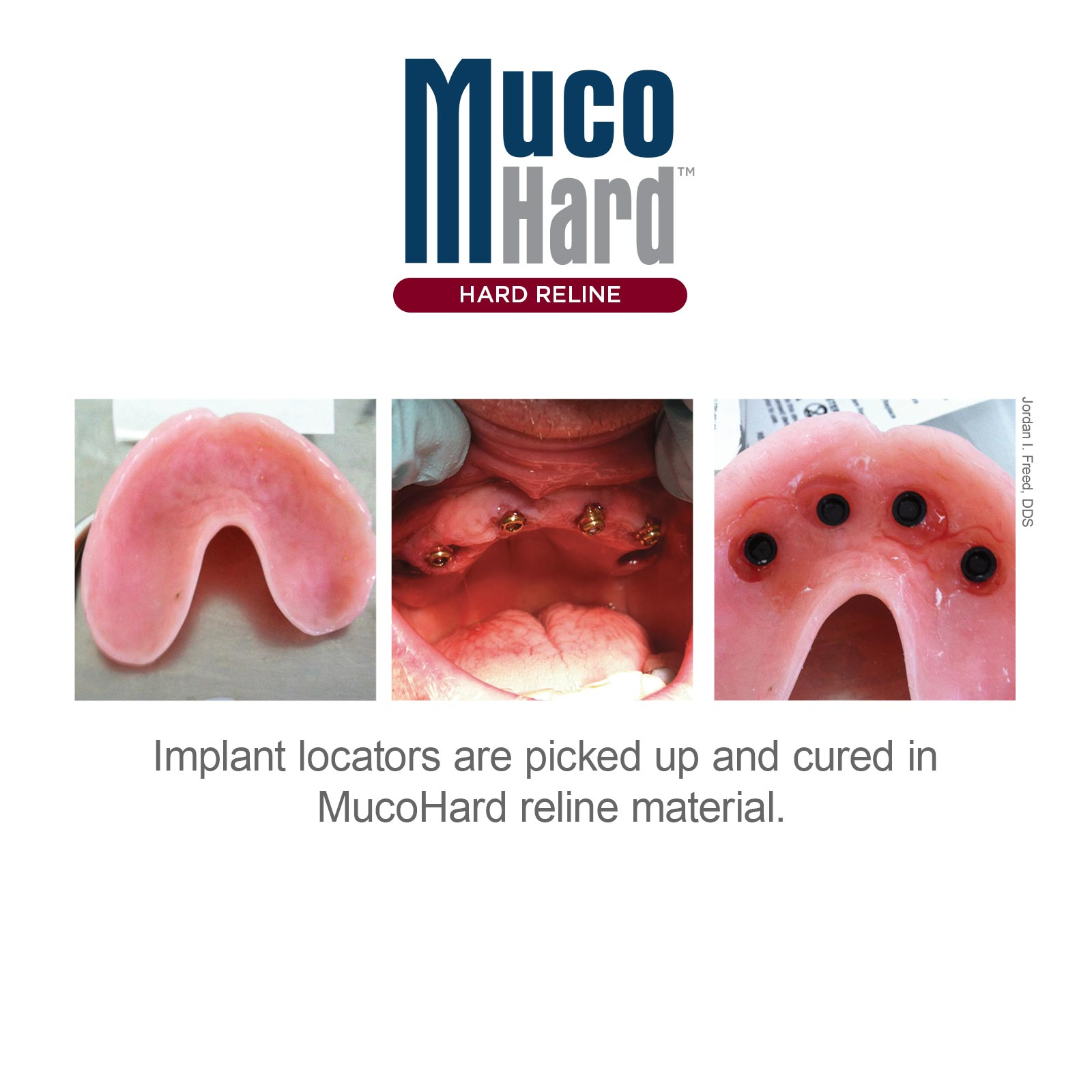 MucoHard Hard Denture Reline Clinical